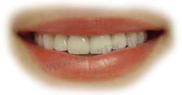 Estetik Cam fiber diş köprüsü fiyatları