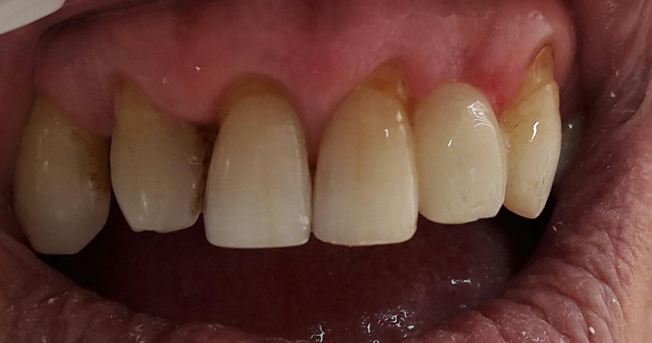 Sallanan dişler nasıl güçlendirilir